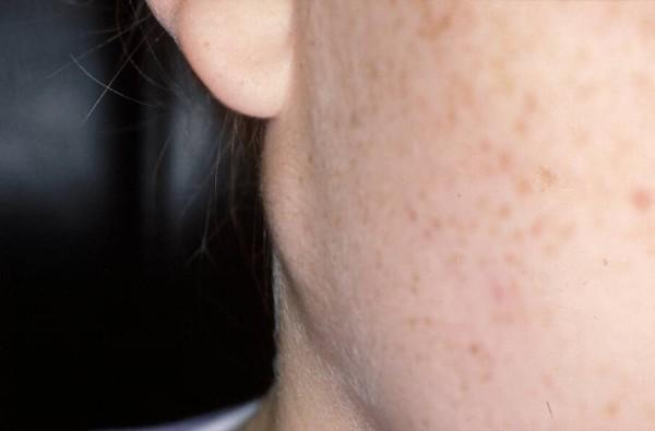 Mucoepidermoid carcinoma of the right parotid gland