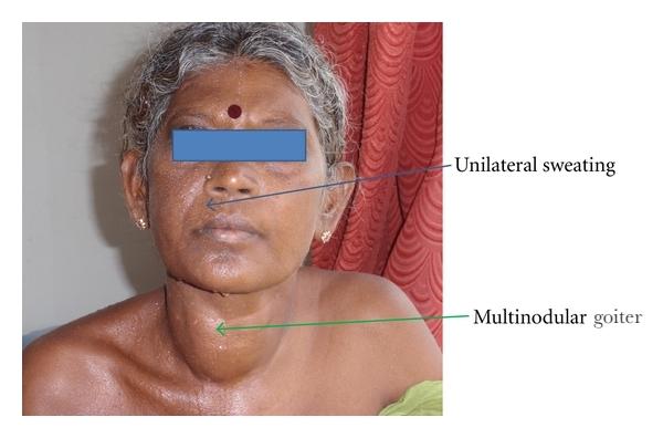 Multinodular-goiter-in-woman