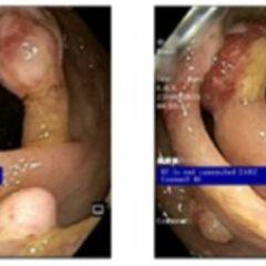 Multiple pedunculated and sessile, non-bleeding juvenile polyps
