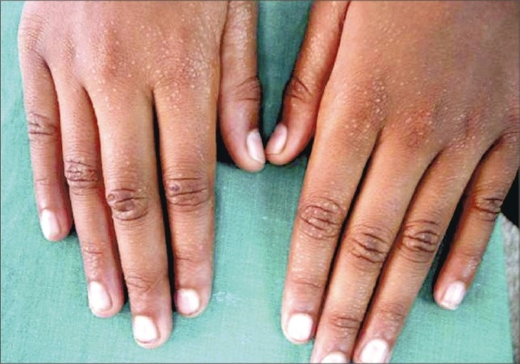 Multiple skin papules on the hands
