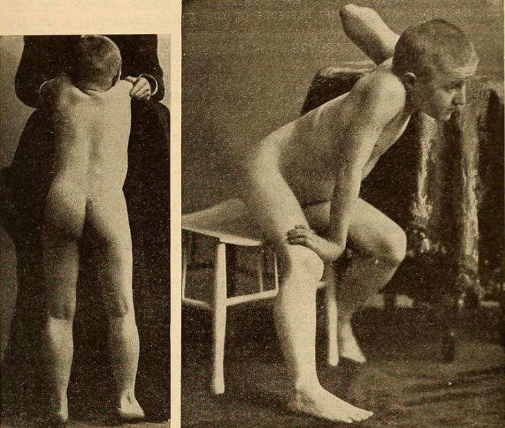 Muscle weakness in Duchenne