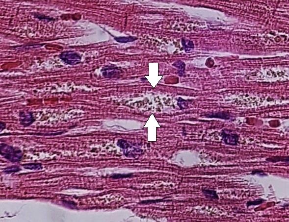 Myocardial lipofuscin