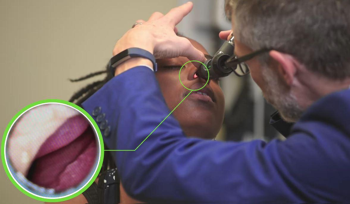 Nasal inspection