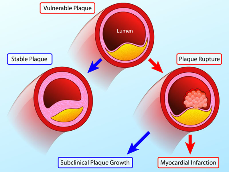 Natural history of the vulnerable/unstable plaque