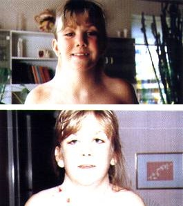 Neck of girl with Turner Syndrome (before and after)