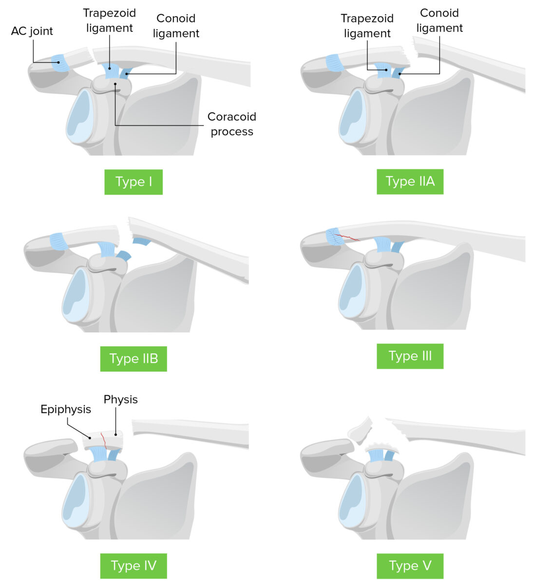 Neer's classification of distal end clavicle fracture