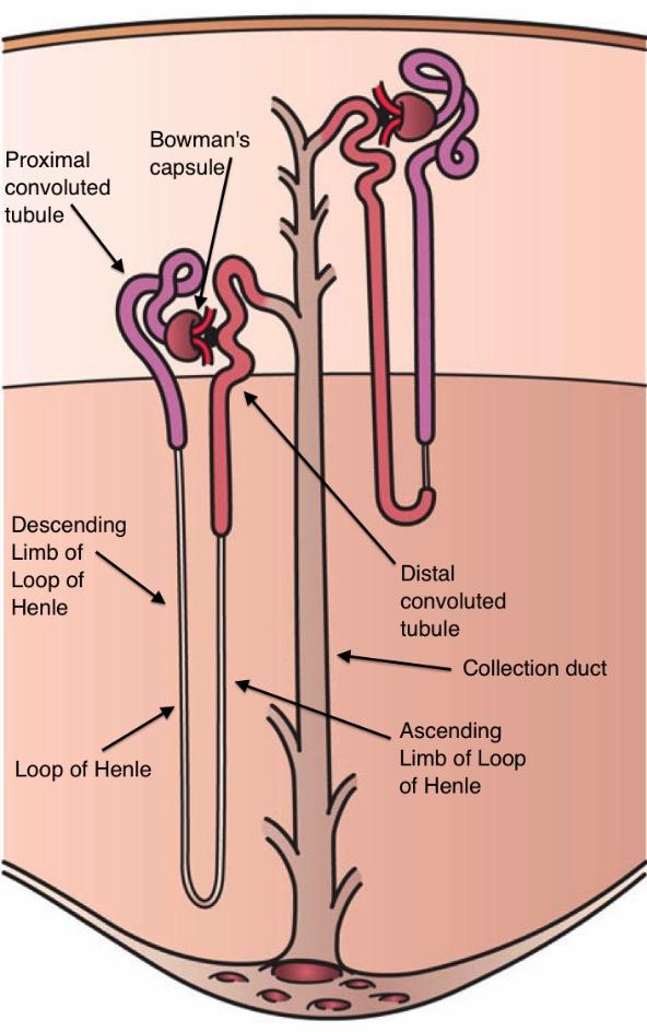 Nephron with Gitelman syndrome