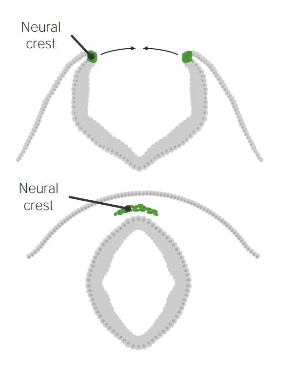 Neural crest