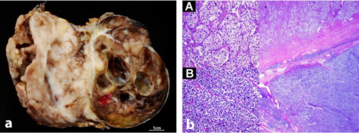 Neuroblastoma gross and histologic appearance
