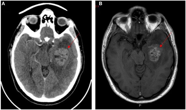 Neuroimaging of glioblastoma multiforme