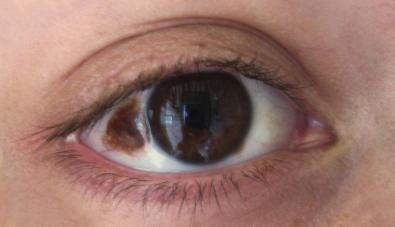 Nevus eye