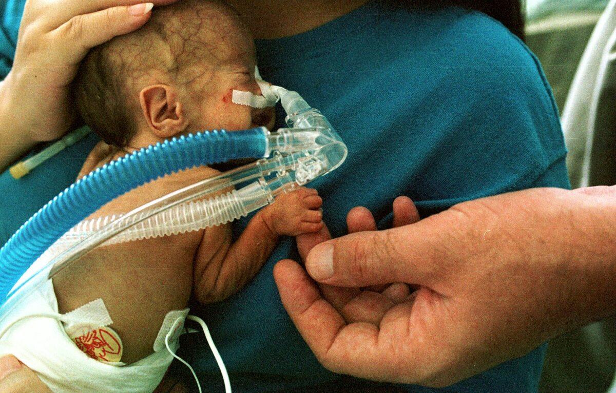 Newborn premature infant on CPAP
