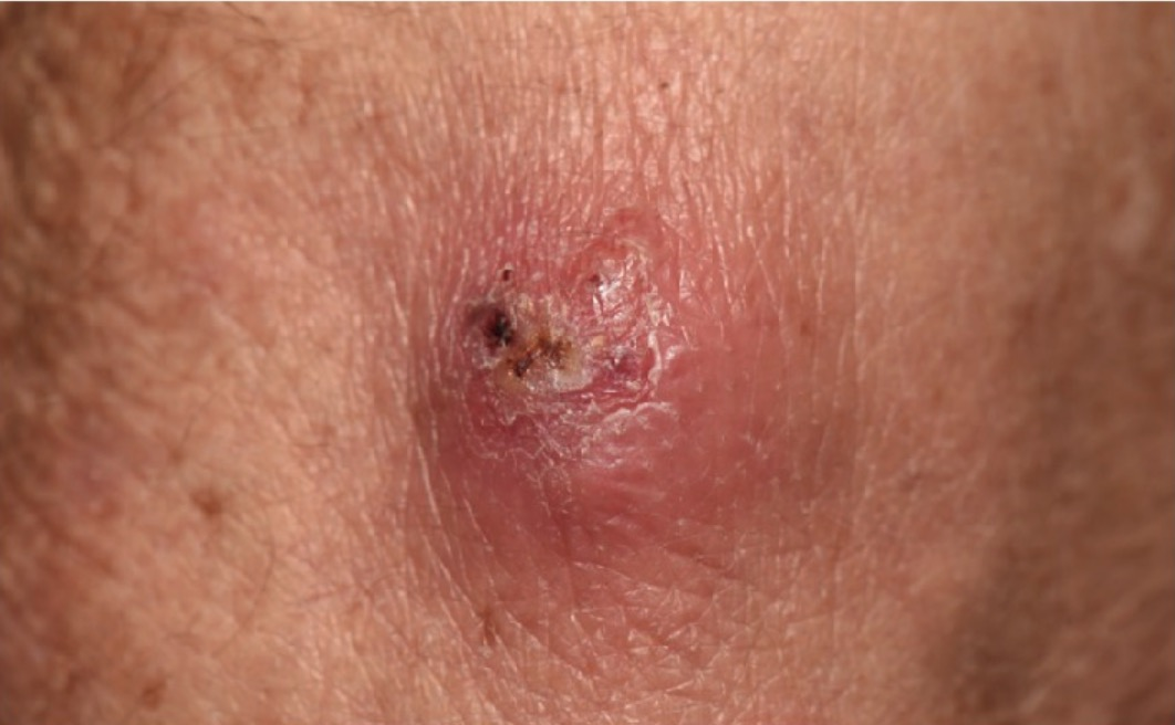 Nocardia brasiliensis Infection