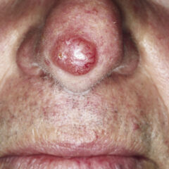 Nodular basal cell carcinoma of the nose