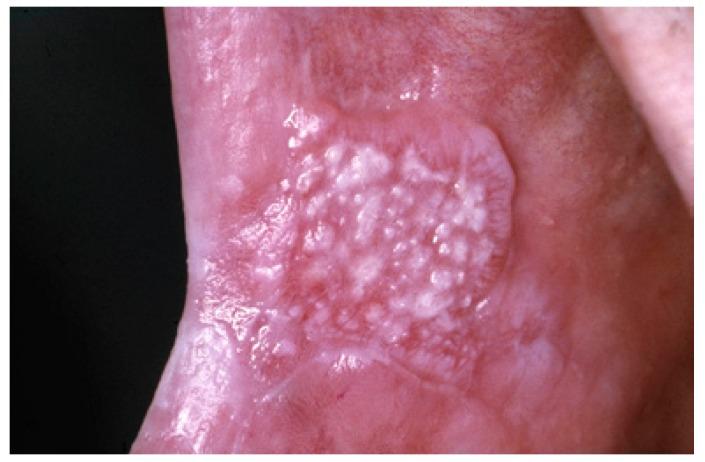 Nodular Nonhomogenous oral leukoplakia
