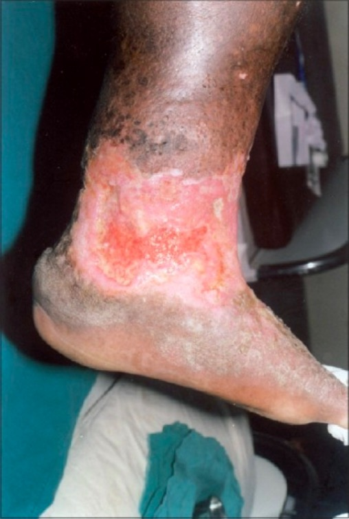 Nonhealing ulcer on leg