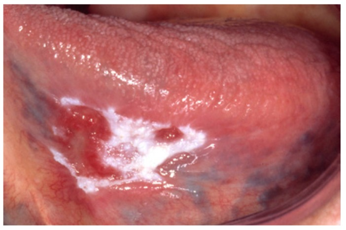 Nonhomogenous leukoplakia