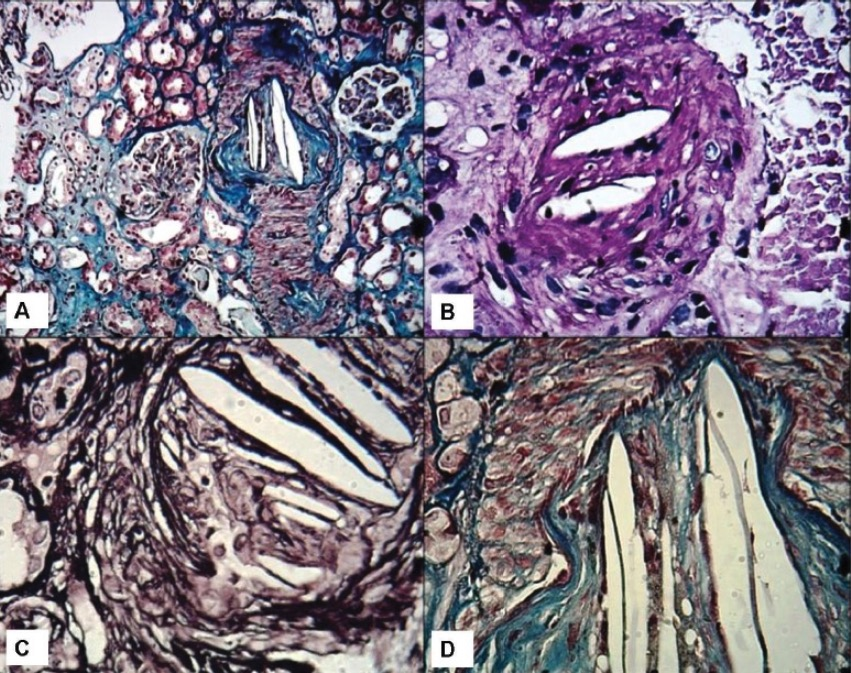 Nontrhombotic embolism contrast induced nephropathy
