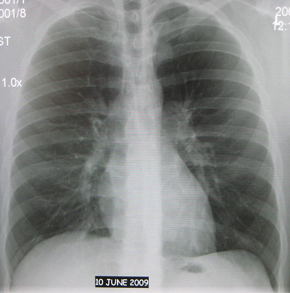 Normal AP chest xray