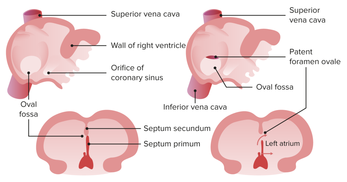 Normal closure of foramen ovale and patent foramen ovale
