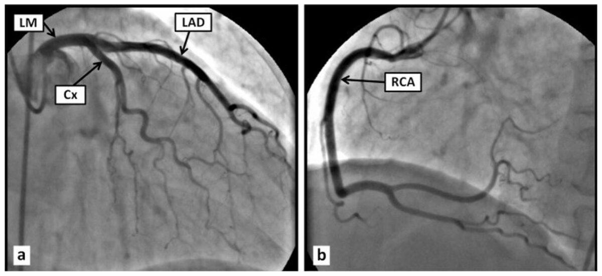 Normal coronary angiogram
