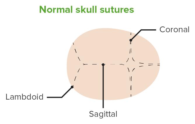 Normal cranial sutures