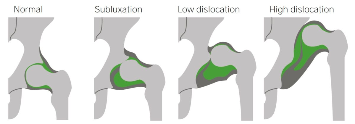 Normal hip joint vs DDH