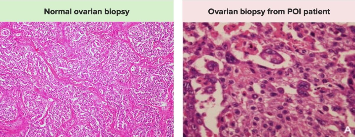 Normal histo vs cell tumor of the ovary