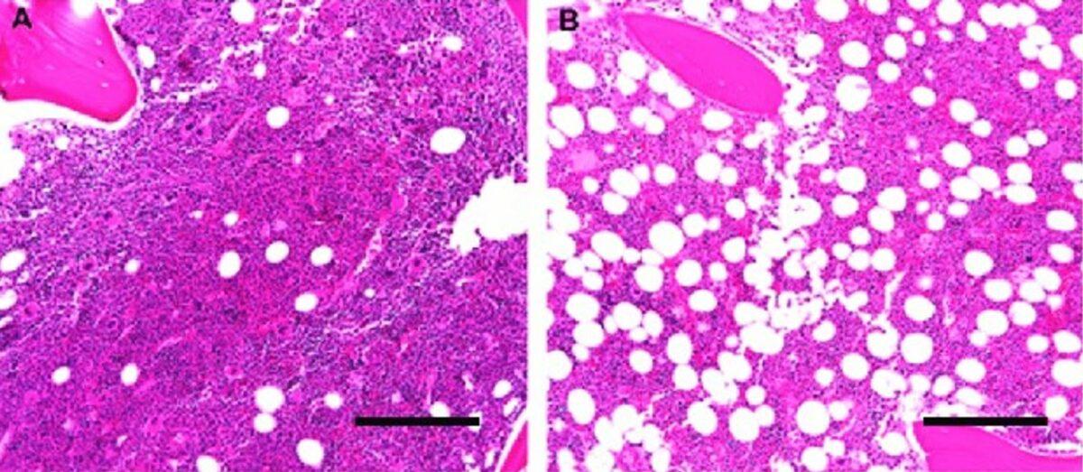 Normal human bone marrow histologic architecture