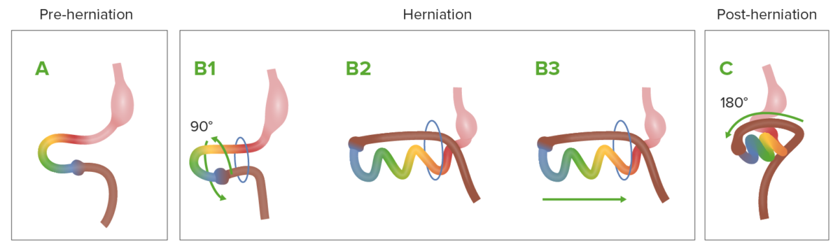 Normal process of herniation during embryologic development