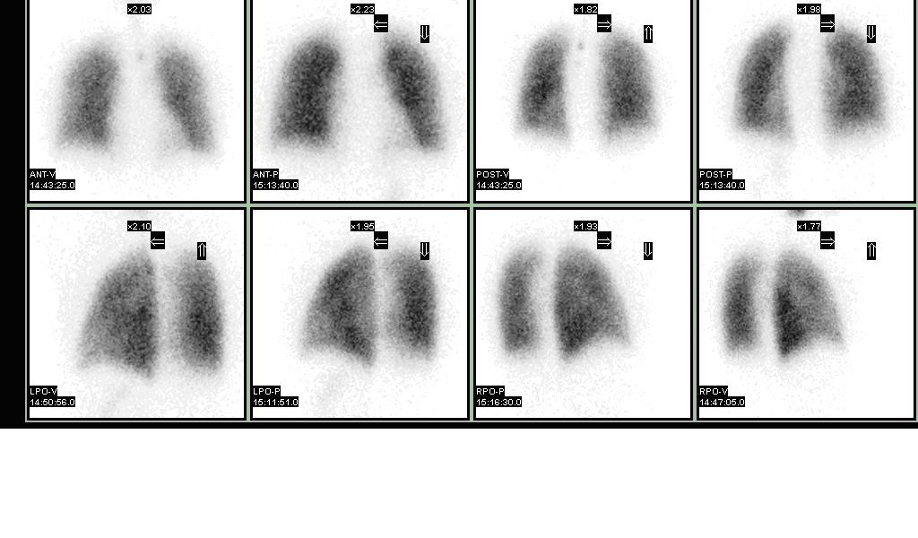 Normal pulmonary ventilation and perfusion (VQ) scan