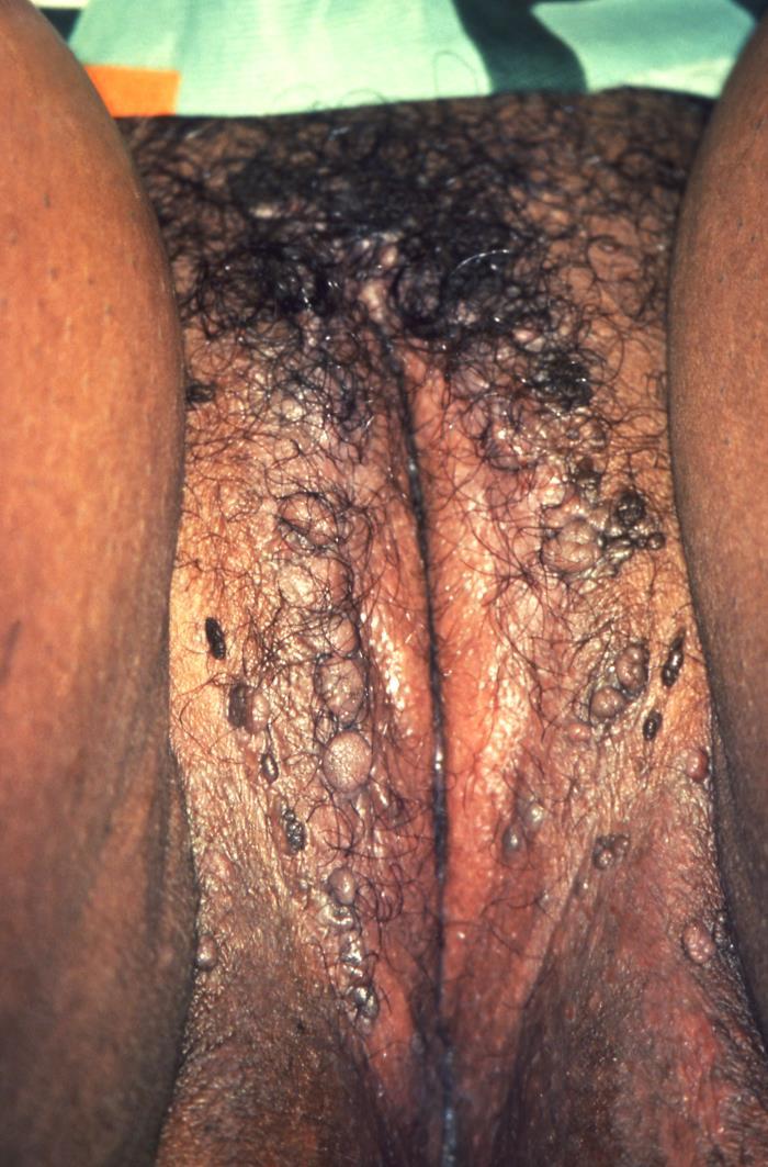Numerous genital warts on the labia majora