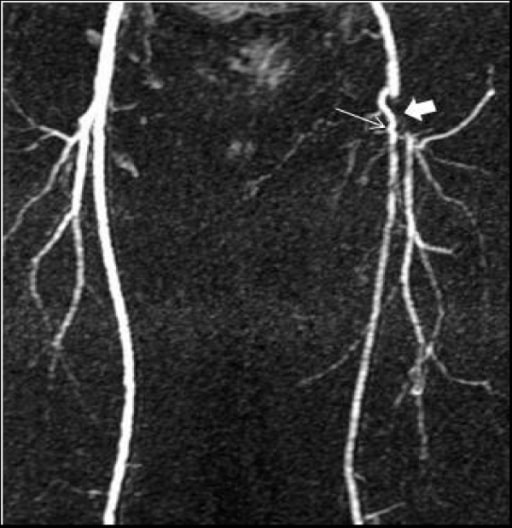 Occluded arteries MRA