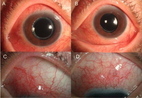 Ocular toxocariasis