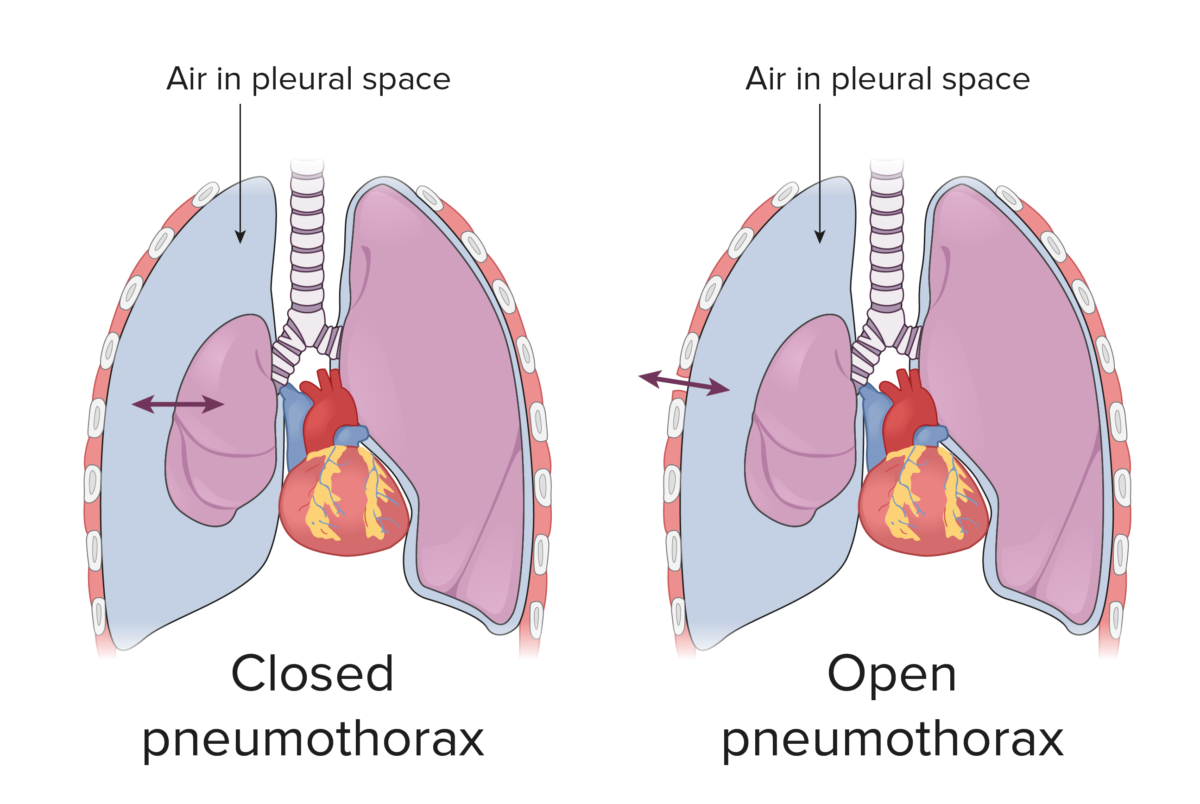 Open and closed pneumothorax