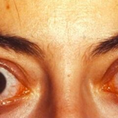 Ophthalmopathy due to Graves disease
