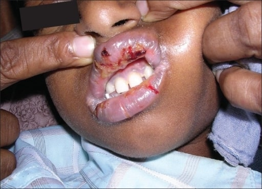 Oral lesions associated with nevirapine-related Stevens Johnson syndrome