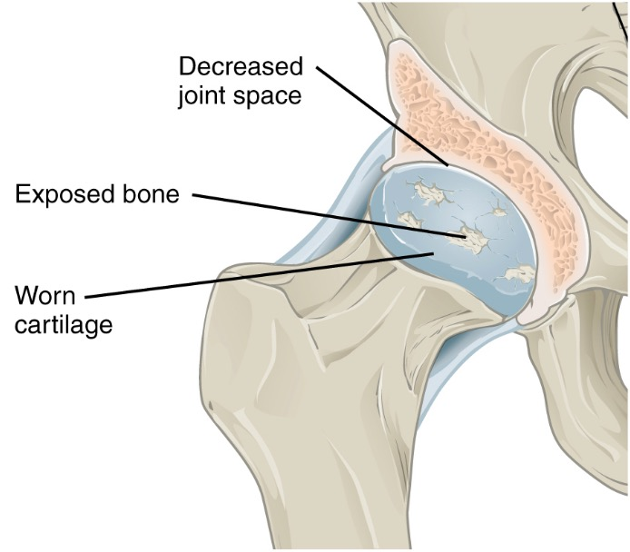 Osteoarthritis of synovial joint