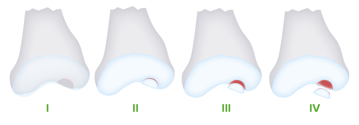Osteochondritis dissecans 4 stages