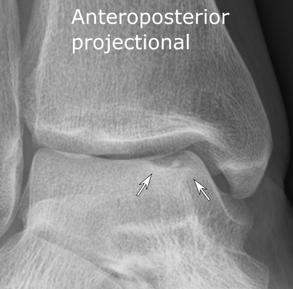 Osteochondritis dissecans ankle X-ray