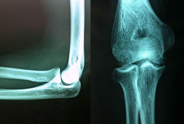Osteochondritis dissecans elbow X-ray
