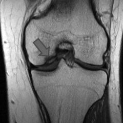 Osteochondritis dissecans knee MRI