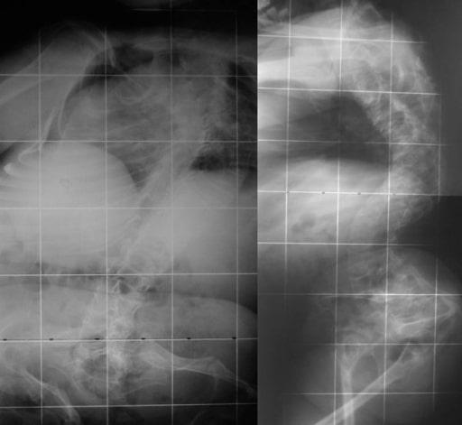 Osteogenesis imperfecta radiographs