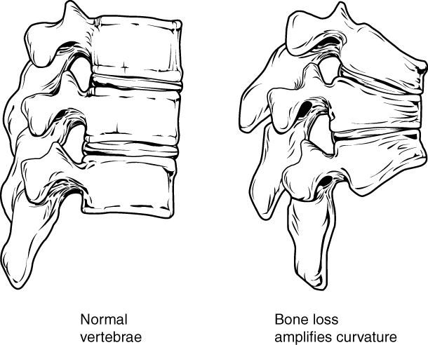 Osteoporosis of spine