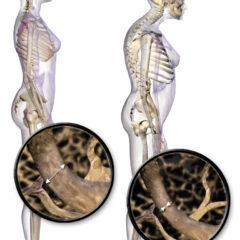 Osteoporosis posture