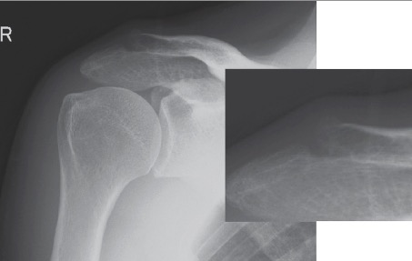 Osteosclerosis of the distal end of the clavicle