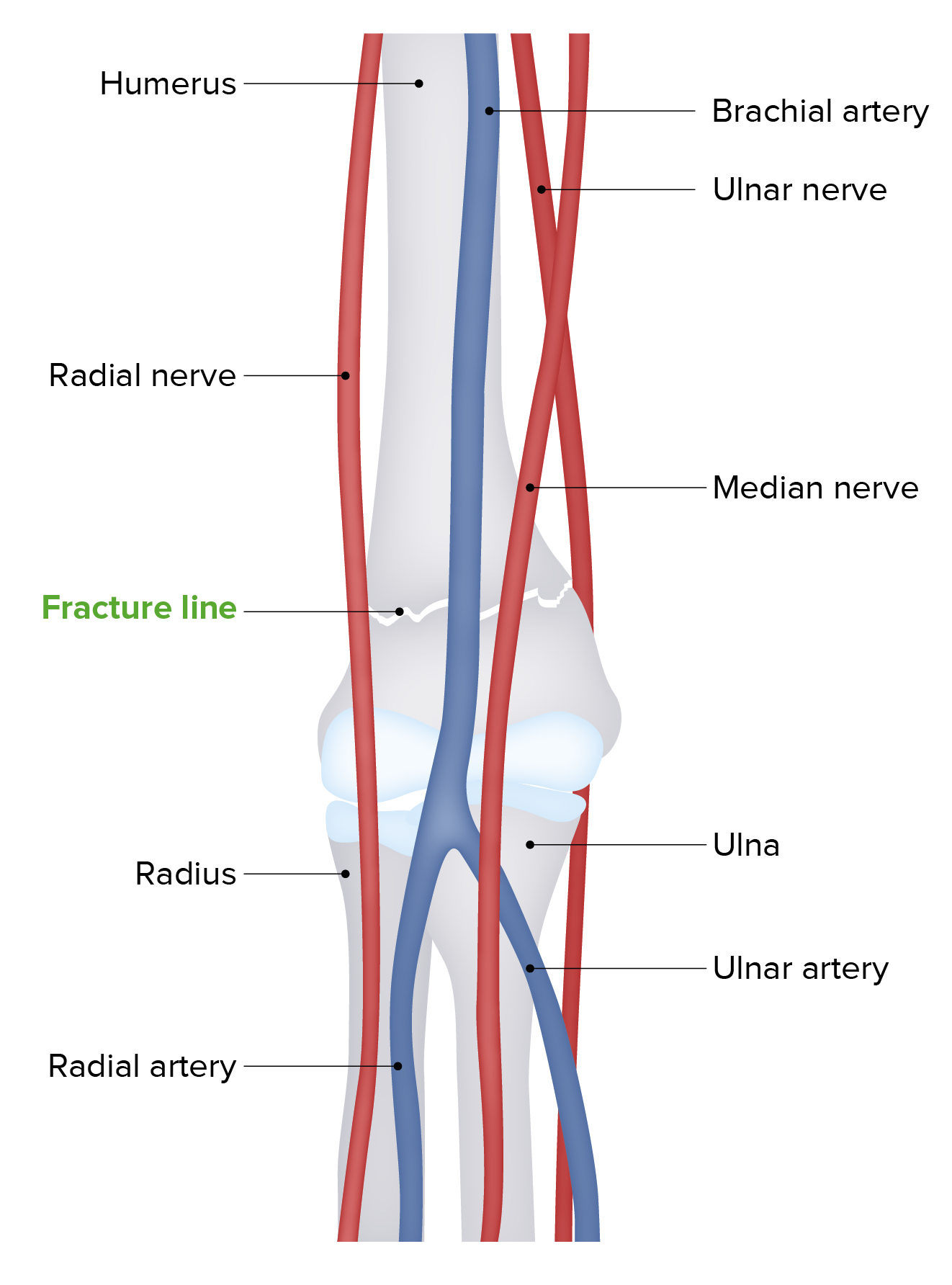 Overview anatomy diagram (fracture)
