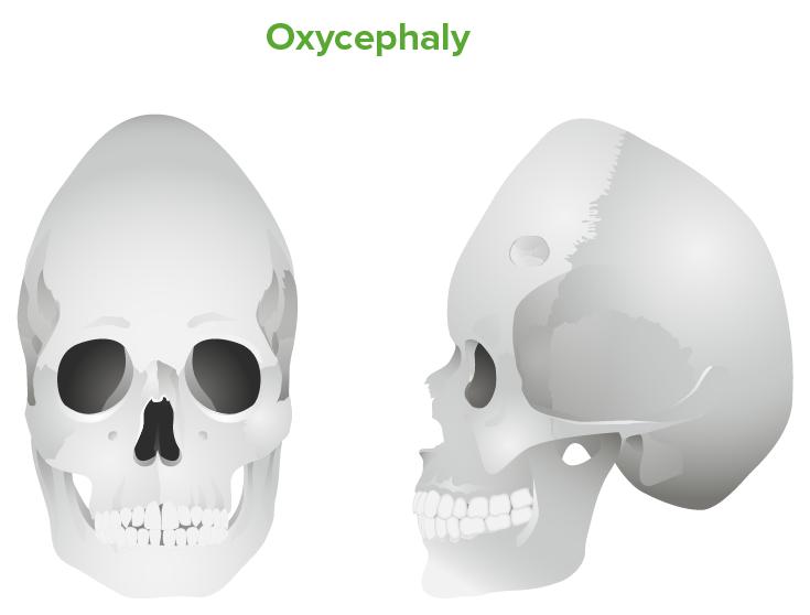 Oxycephaly
