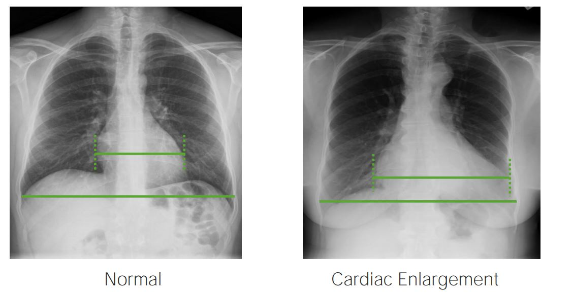 PA X-ray projections of the chest showing the calculation of the cardiothoracic index