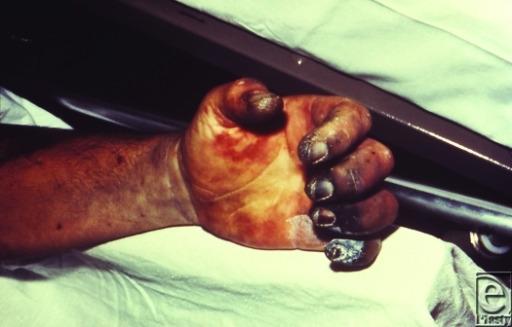 Gangrene of the fingers
